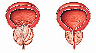 Prostata - objawy, diagnostyka, leczenie